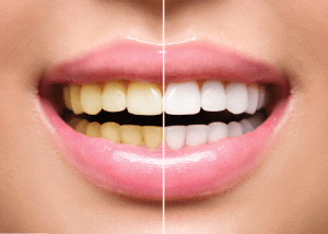 Tooth Whitening Canberra Dental Care